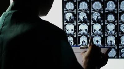 A mobil-sugárzás agydaganatot is okozhat, a gyerekek is sugárzásnak vannak kitéve